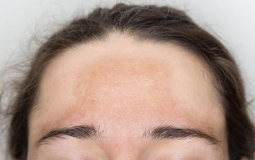 Discovered a New Treatment of Melasma, may Forever change your Skin